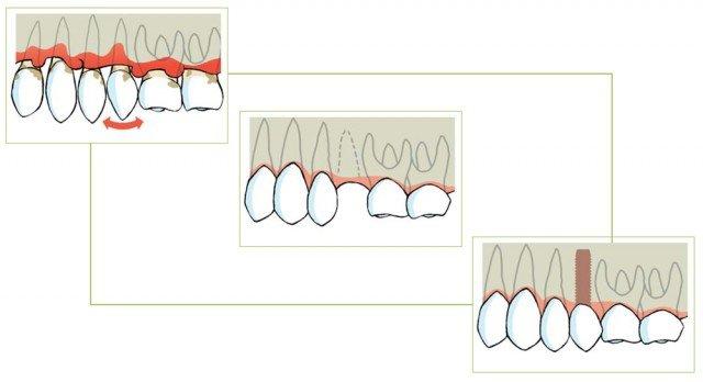 ¿A un paciente que padezca enfermedad periodontal le pueden ser colocados implantes dentales?