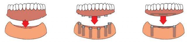¿Cómo puedo rehabilitar la boca cuando me faltan todos los dientes y muelas?