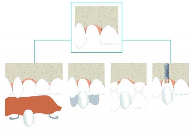 ¿Cómo puedo solucionar la ausencia de un diente aislado?