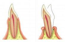 ¿Es reversible la movilidad dental producida por periodontitis?