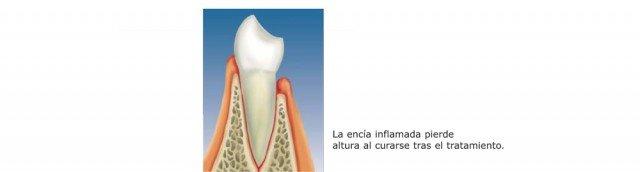 ¿Mejora el tratamiento periodontal la estética bucal?