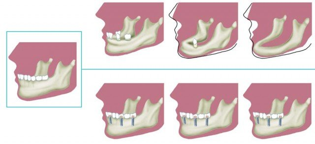 ¿Para qué sirven los implantes dentales?