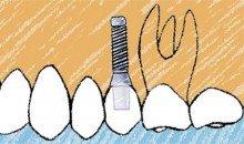 ¿Puedo colocarme implantes si tengo enfermedad periodontal?