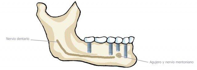 ¿Qué complicaciones pueden presentarse durante el tratamiento con implantes dentales?