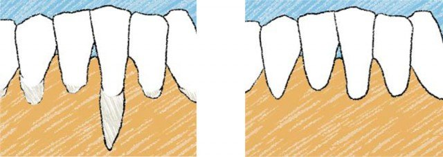 ¿Qué es la cirugía estética periodontal?
