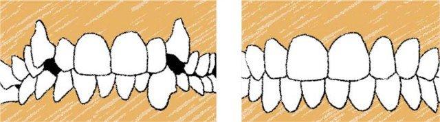 ¿Qué relación guardan las malposiciones dentarias con la enfermedad periodontal?