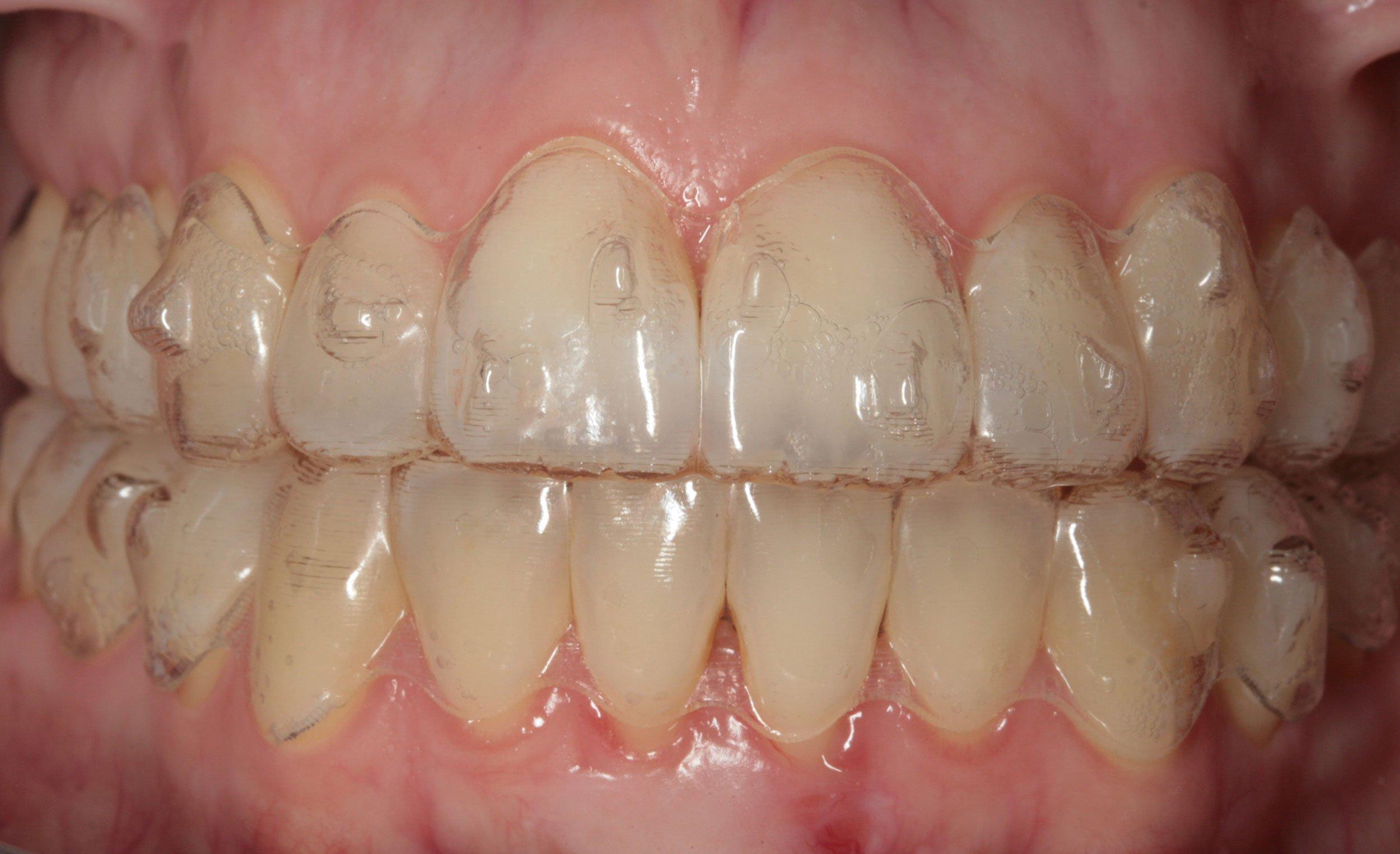Before-Ortodoncia invisible (Invisalign)