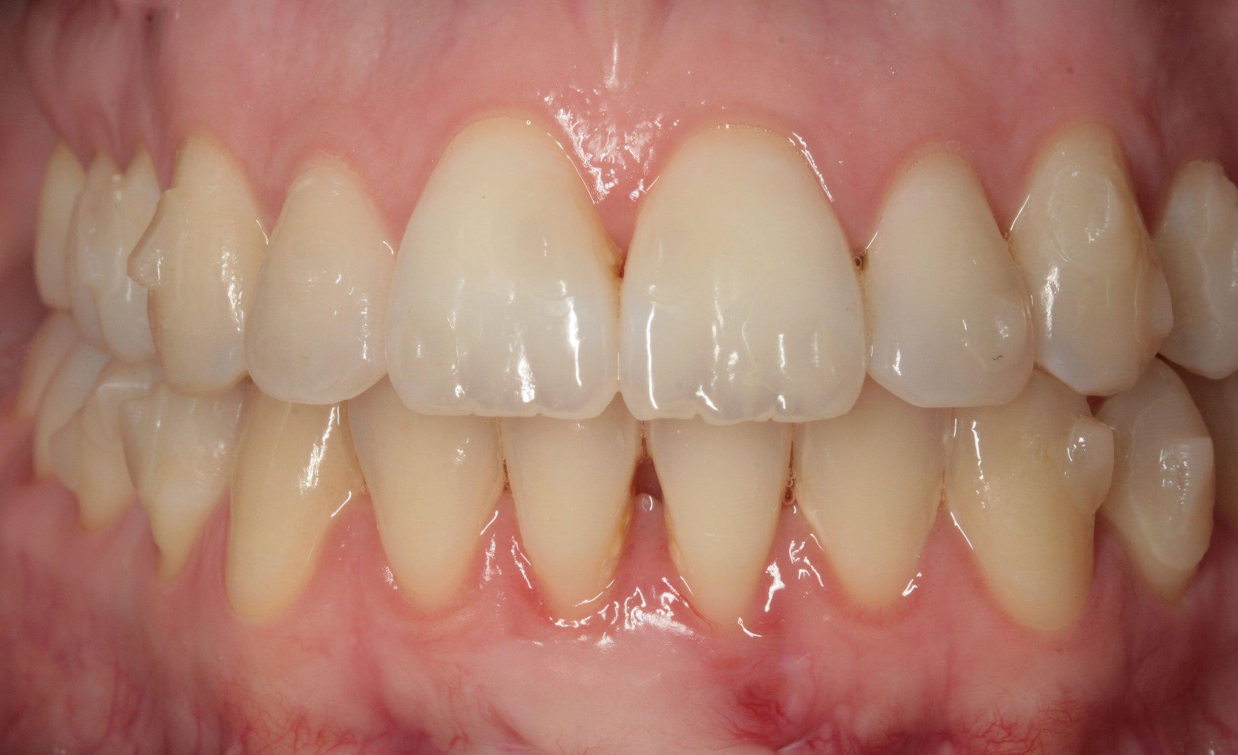 After-Ortodoncia invisible (Invisalign)