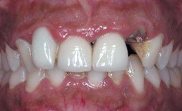 Before-Prótesis fijas o coronas sobre dientes