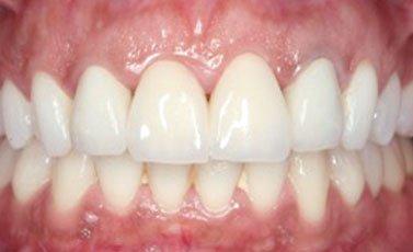 After-Prótesis fijas o coronas sobre dientes