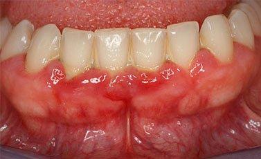 Before-Tratamiento periodontal avanzado