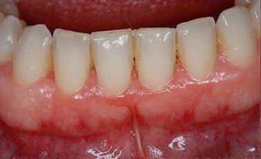 After-Tratamiento periodontal avanzado