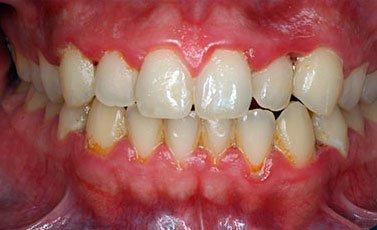 Before-Tratamiento periodontal básico