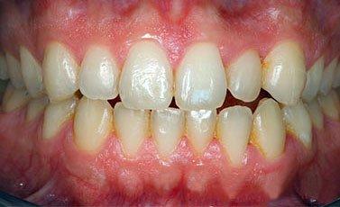 After-Tratamiento periodontal básico