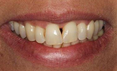 Before-Cierre de espacios entre los dientes