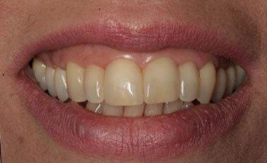 After-Cierre de espacios entre los dientes